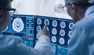 英特尔和Penn Medicine正在开发一种AI以用来发现脑肿瘤